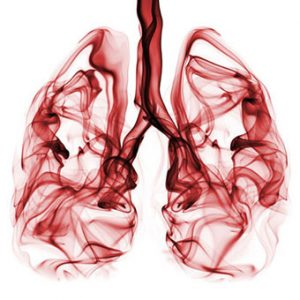 Lung Cancer Caused By Exposure To Asbestos - RelionGroup